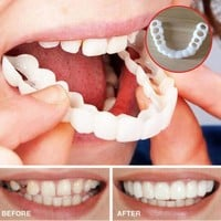 Instant Smile Fit Comfort Flex Cosmetic Teeth Denture Teeth Top Cosmetic Veneer