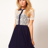 Lace Sort-Sleeve Button-Up Dress