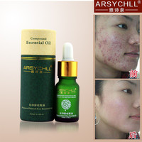 Face Care Acne Scar Removal Cream Acne Spots Skin Care Treatment Stretch Marks Whitening Remove Acne Face Essential Oils Care