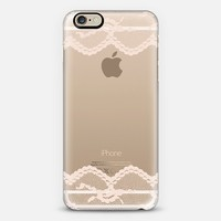 Double Beige Romantic Lace iPhone 6 case by Organic Saturation | Casetify