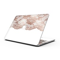 Rose Gold Lace Pattern 2 - MacBook Pro with Retina Display Full-Coverage Skin Kit