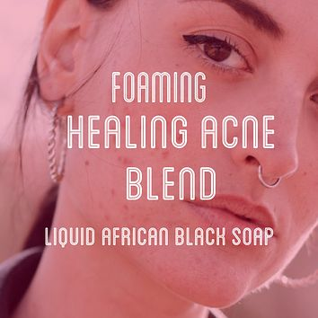 Fra Fra's Naturals | Premium Healing Acne Foaming African Black Soap Face and Body Wash