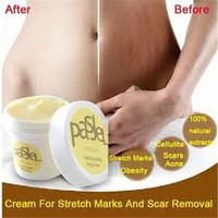 Cream Remove Scar Stretch Marks Care Postpartum Maternity Skin Body Repair (Size: One Size) Care [9303685130]